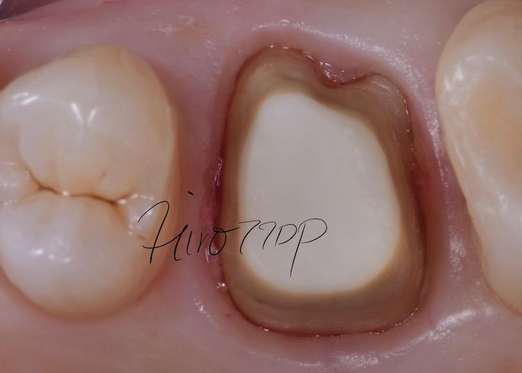 銀歯を除去し、ジルコニアクラウン(虎ノ門デンタルプラクティス 女医 長坂裕子)レーザー治療後