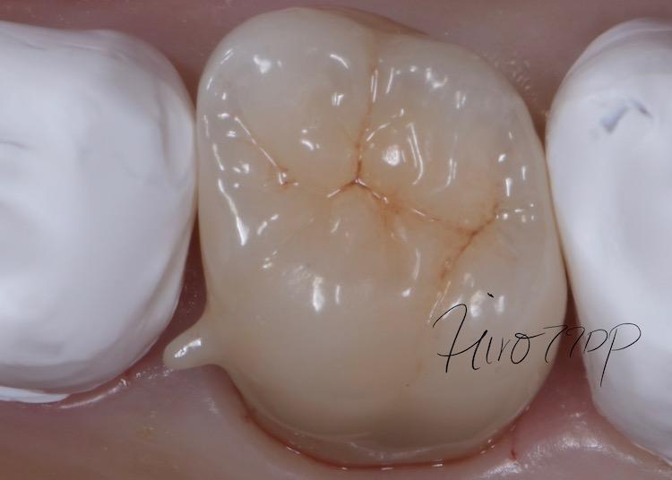 銀歯を除去し、ジルコニアクラウン(虎ノ門デンタルプラクティス 女医 長坂裕子)