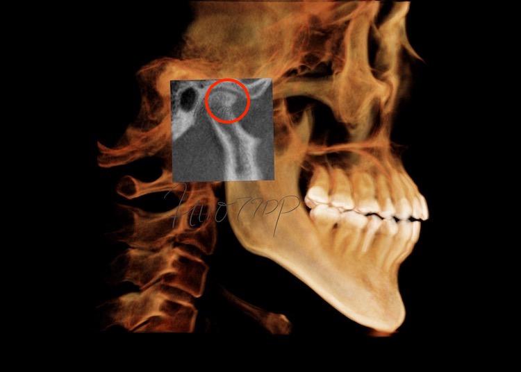 顎関節CT(横断面・矢状面)で分析・診断 (Kavo CT)(港区神谷町 虎ノ門デンタルプラクティス 女医 長坂裕子)