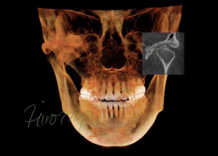 顎関節CT(正面像・矢状面)で分析・診断したケース