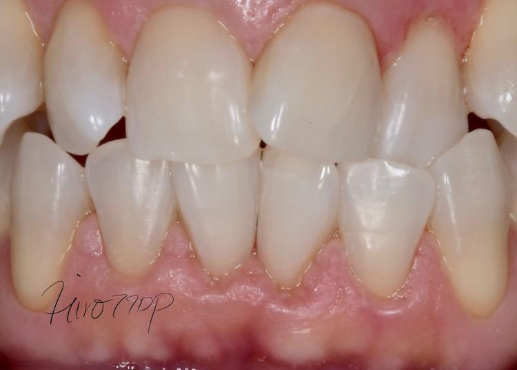 歯肉炎レーザー治療ケース