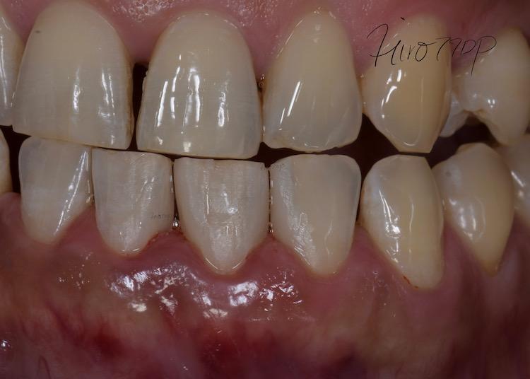 下前歯の隙間をダイレクトボンディング治療(港区神谷町 虎ノ門デンタルプラクティス 女医 長坂裕子)