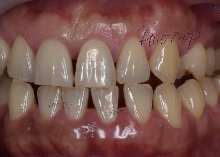下前歯の隙間をダイレクトボンディング治療したケース