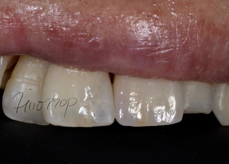 矯正治療なしでかみ合わせと前歯の治療をしたケース