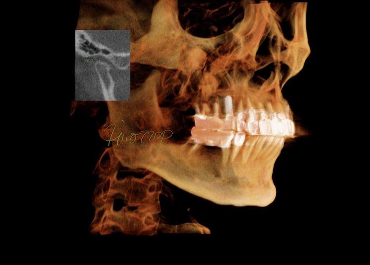 顎関節症総合治療 Kavo CT Volume Render R 3/4 view(港区神谷町 虎ノ門デンタルプラクティス 女医 長坂裕子)