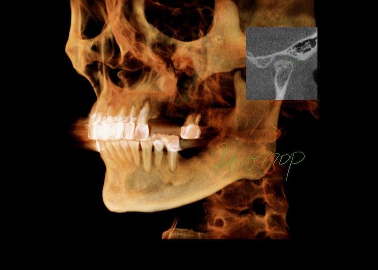 顎関節症を伴った総合治療のケース