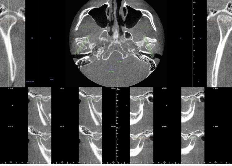 顎関節症総合治療 TMJ顎関節症総合治療(港区神谷町 虎ノ門デンタルプラクティス 女医 長坂裕子)右顎関節|左顎関節