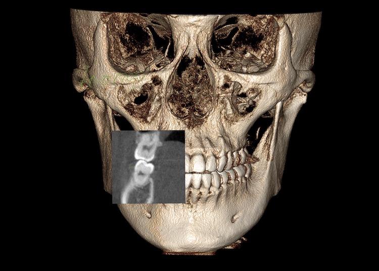 かみ合わせと顎関節の精密検査&診査診断したケース