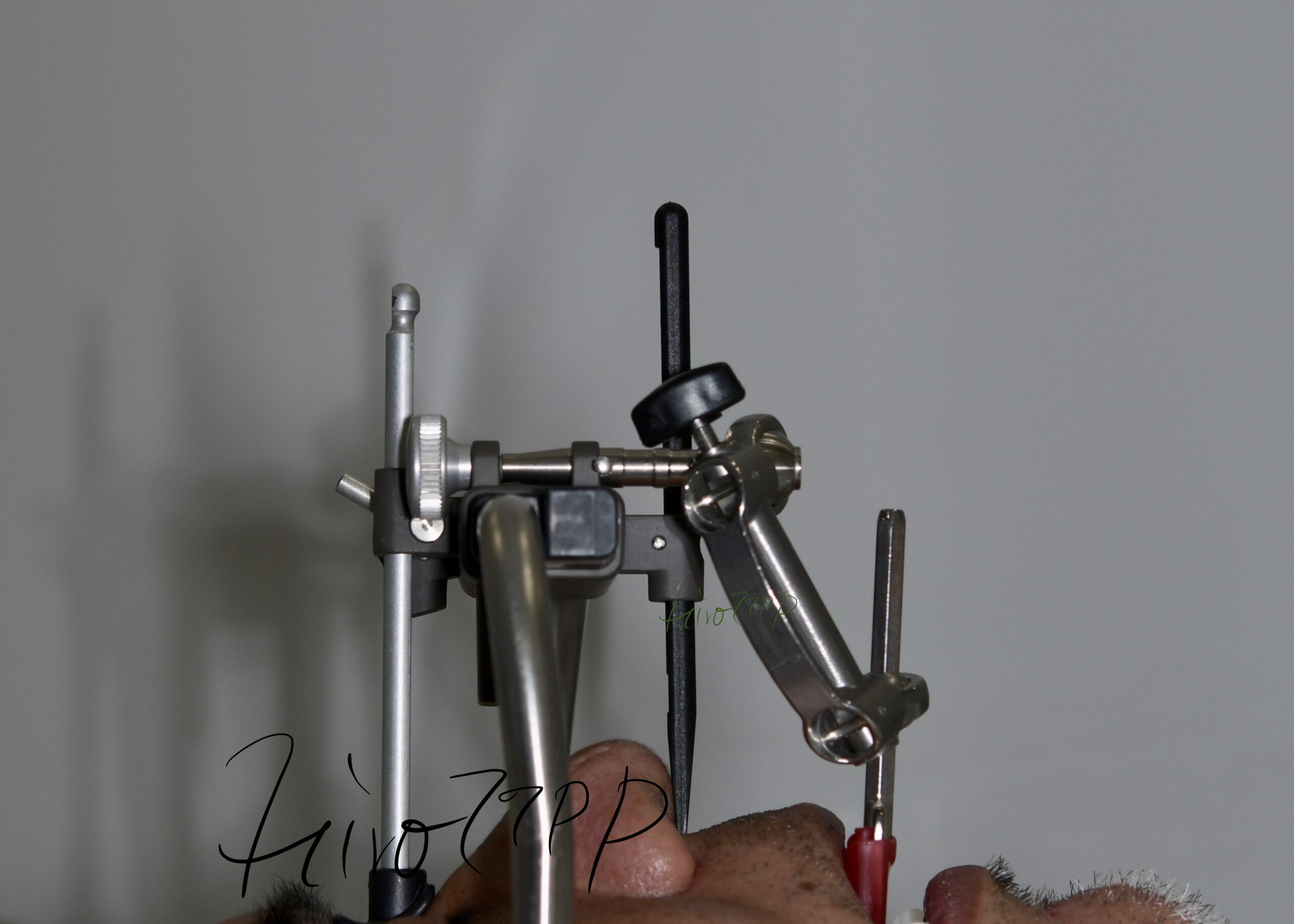 フェイスボウ 顎関節症総合治療 TMJ(港区神谷町 虎ノ門デンタルプラクティス 女医 長坂裕子)