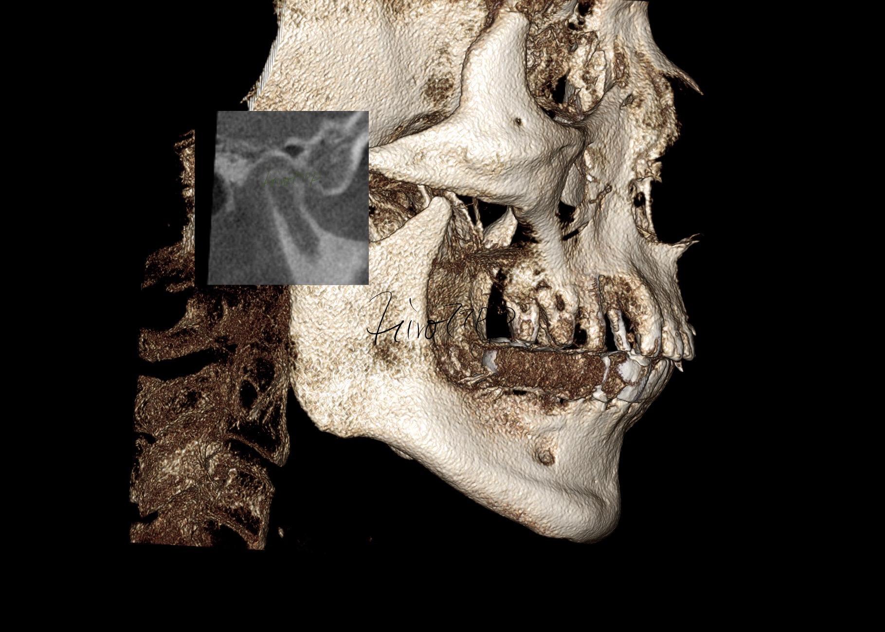 顎関節症総合治療 TMJ顎関節症総合治療(港区神谷町 虎ノ門デンタルプラクティス 女医 長坂裕子)