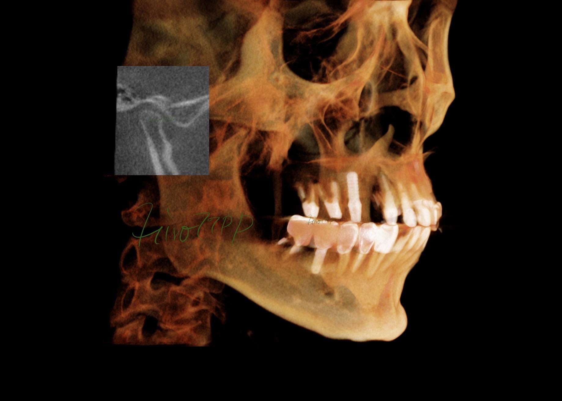 顎関節症総合治療 Kavo CT Volume Render L 3/4 view(港区神谷町 虎ノ門デンタルプラクティス 女医 長坂裕子)